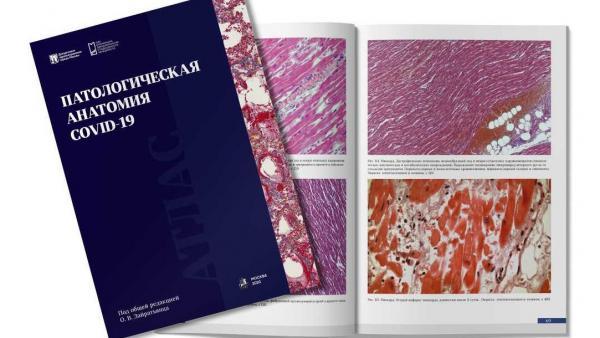 В России издан первый и самый большой в мире атлас патологической анатомии по COVID-19